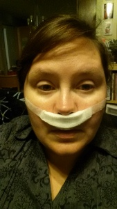 Me and my gauze mustache